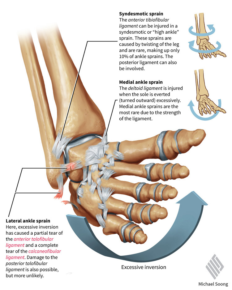 Amazing Sprained Ankle Anatomy Illustration - Anatomy Ideas - yunoki ...